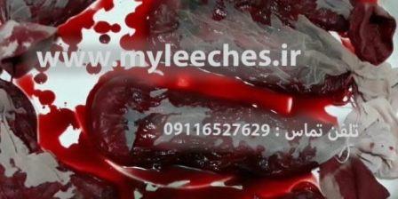 شرکت های خرید و فروش خون زالو